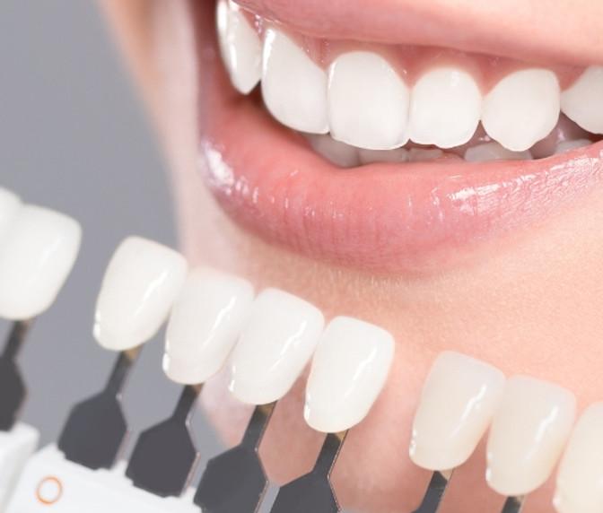 NIEUWS - Steeds meer vraag naar tandenbleken!